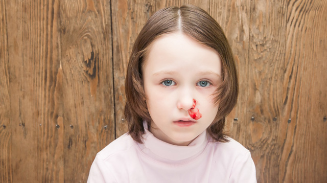 How to Stop Your Child's Nosebleed--and When You Need to Worry