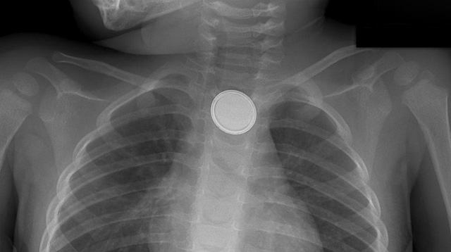 Button Battery Poses Serious Dangers to Children