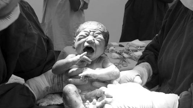 10 Reasons Why Doctors Perform Emergency C-Section