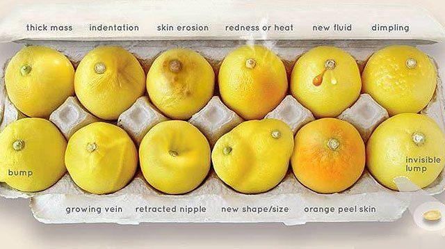 These Lemons Reveal What Breast Cancer Is Really Like