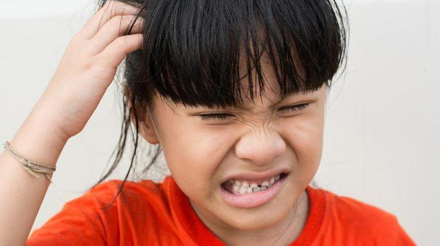 How to Get Rid of 'Kuto' (Head Lice) Once and for All