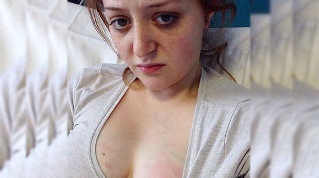 Mom Gets Real About Breastfeeding and Shows Photo of Her Mastitis
