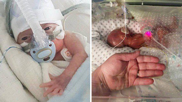 This One-Pound Preemie Baby Defied His Doctors and Survived