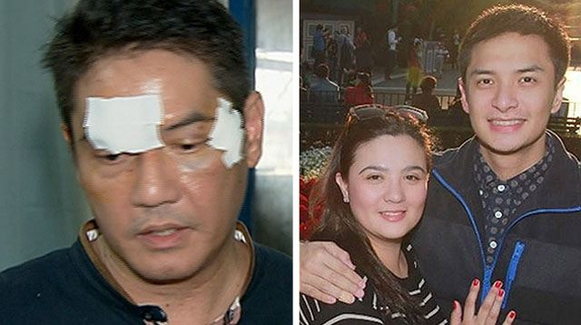Sunshine Dizon's Ex Involved In Fistfight With Husband of Alleged Mistress
