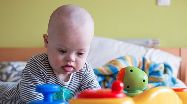 Are You at Risk of Having a Baby With Down Syndrome? It's Not Just Age