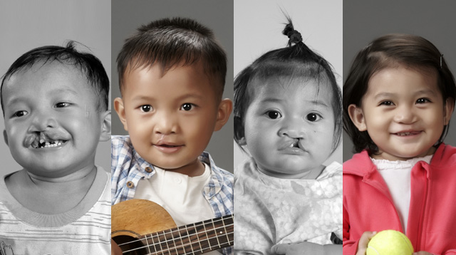 Vicki Belo Gives Back Through Project for Kids With Cleft Lip and Cleft Palate