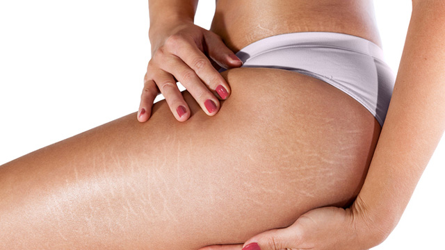 This Woman Got Rid of Her Stretch Marks Using This Tool