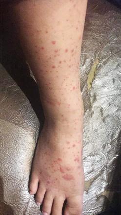 Disease what is hsp Henoch