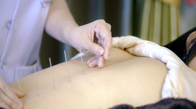 Sr. Regina Liu: Helping Couples Have Babies Through the Natural Medicine of Acupuncture