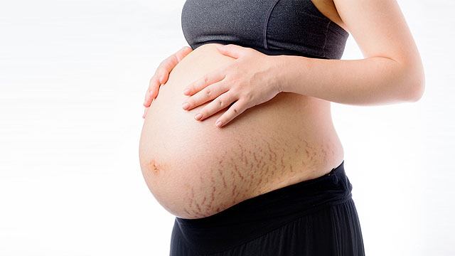 Are You Prone to Getting Stretch Marks? Doctors Say It Depends on These 4 Factors