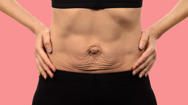 Loose Skin After Pregnancy: 7 Ways You Can Eliminate A Saggy Skin