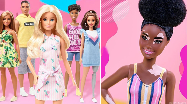LOOK: Mattel Introduces Barbie Dolls With Vitiligo, Prosthetic Legs
