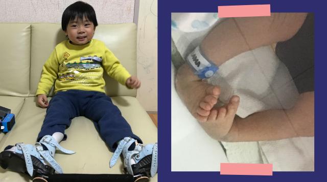 'Hindi Ipinaglihi Sa Crabs': Ikinwento Ni Mommy Ang Journey Ng Anak Niyang May Clubfoot