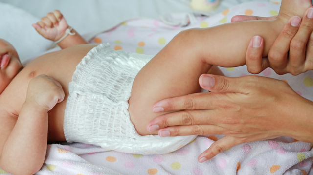 6 Ways To Prevent Diaper Rash And How To Deal When Your Baby Gets It