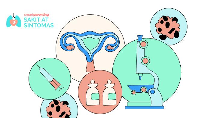 Cervical Cancer (Kanser sa Kwelyo ng Matris)