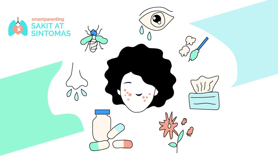 Allergy - Sanhi at Sintomas