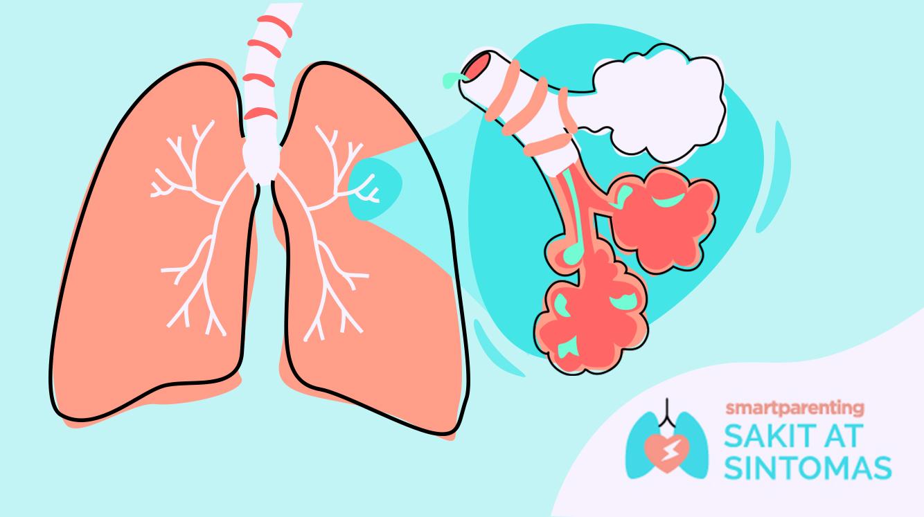 Bronchitis – Sanhi At Sintomas
