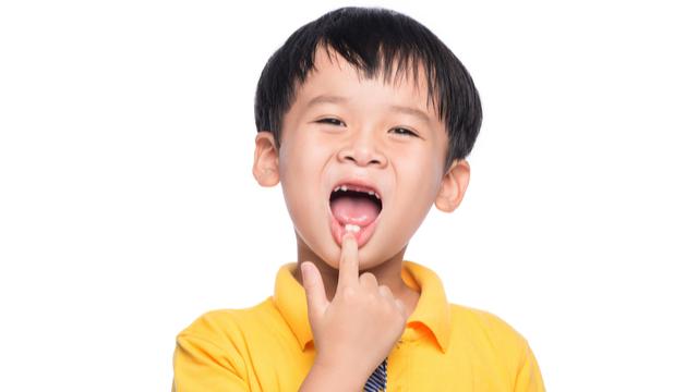 Bakit Hindi Dapat Pangunahan Ang Pagbunot Ng Milk Teeth, Ayon Sa Dentista