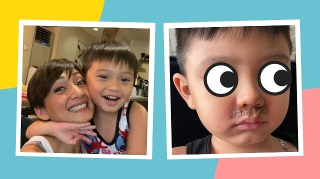 Iya Villania Shares Photos Of Primo's 'Crusty' Infection, A Case Of 'Wiping Nose So Much'