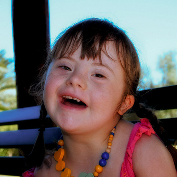 What you Need to Know about Down Syndrome