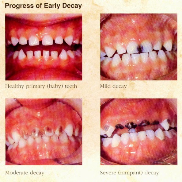 Baby bootle tooth decay