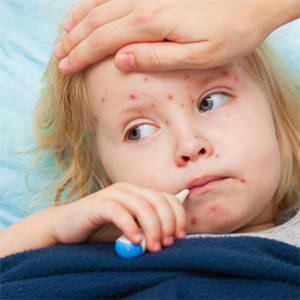 Measles Outbreak in New York City Caused by Non-Vaccination?