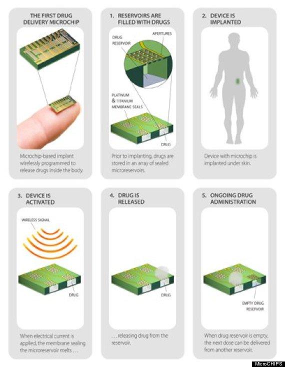 microchip birth control