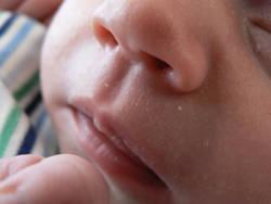 Baby_mouth_CI.jpg