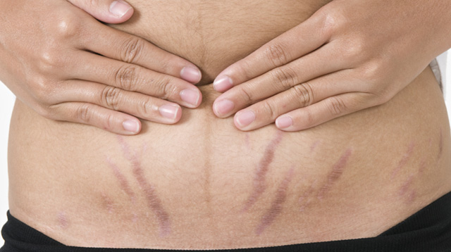 The Truth About Stretch Marks