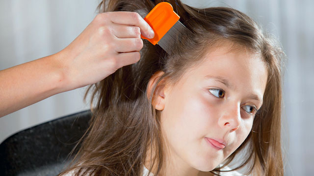 Heads Up! Super Lice Are Real
