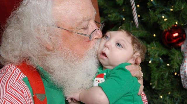 Top of the Morning: Baby with No Skull Meets Santa for The First Time