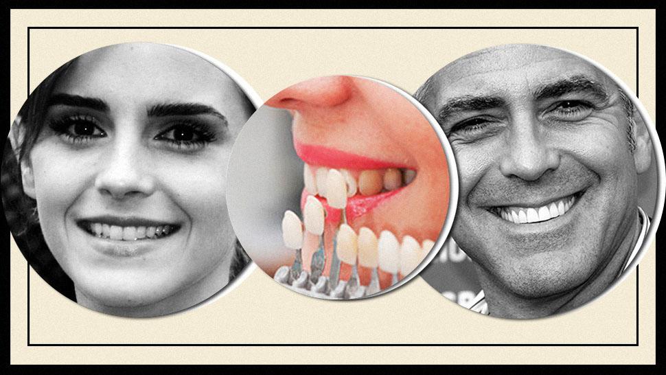 How much do porcelain dental veneers cost in ontario